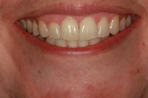 After Invisalign clear braces near Frenchtown
