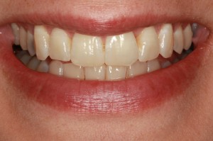Missoula Invisalign patient after treatment