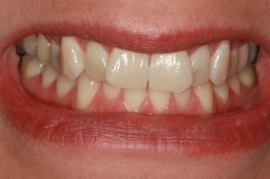 Invisalign patient of Missoula dentist Dr. Felton before treatment