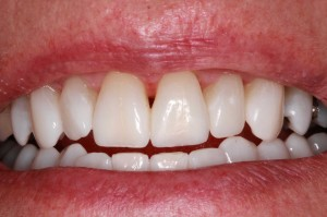 After anterior composites from Frenchtown dentist Dr. Brett Felton