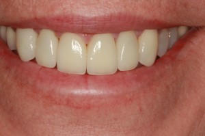 After porcelain veneers from Lolo dentist Dr. Brett Felton