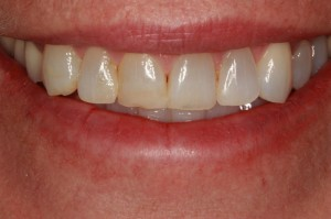 Before porcelain veneers near Lolo MT