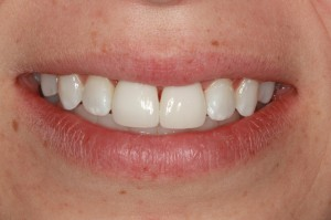 After porcelain veneers from Frenchtown dentist Dr. Brett Felton