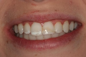 Before porcelain veneers near Frenchtown