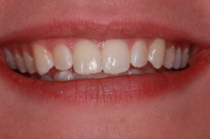 After Invisalign invisible braces from Frenchtown dentist Dr. Felton