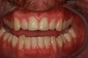 After anterior composites from Missoula dentist Dr. Brett Felton